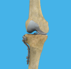 high-tibial-osteotomy.jpg